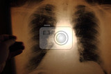 xray of lungs as nice medical background